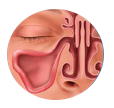 Solving Sinusitis - Balloon Sinus Dilation Process - Step 3: Restoring Sinus Drainage