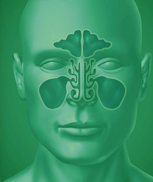 The Sinus System - How it is affected by chronic sinusitis