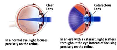 Clear Lens vs. Cataractous Lens