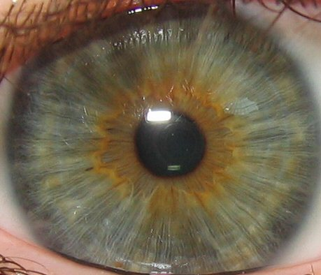Example of a gray-green-brown iris