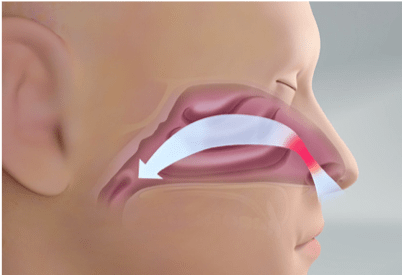 Treating Nasal Valve Collapse