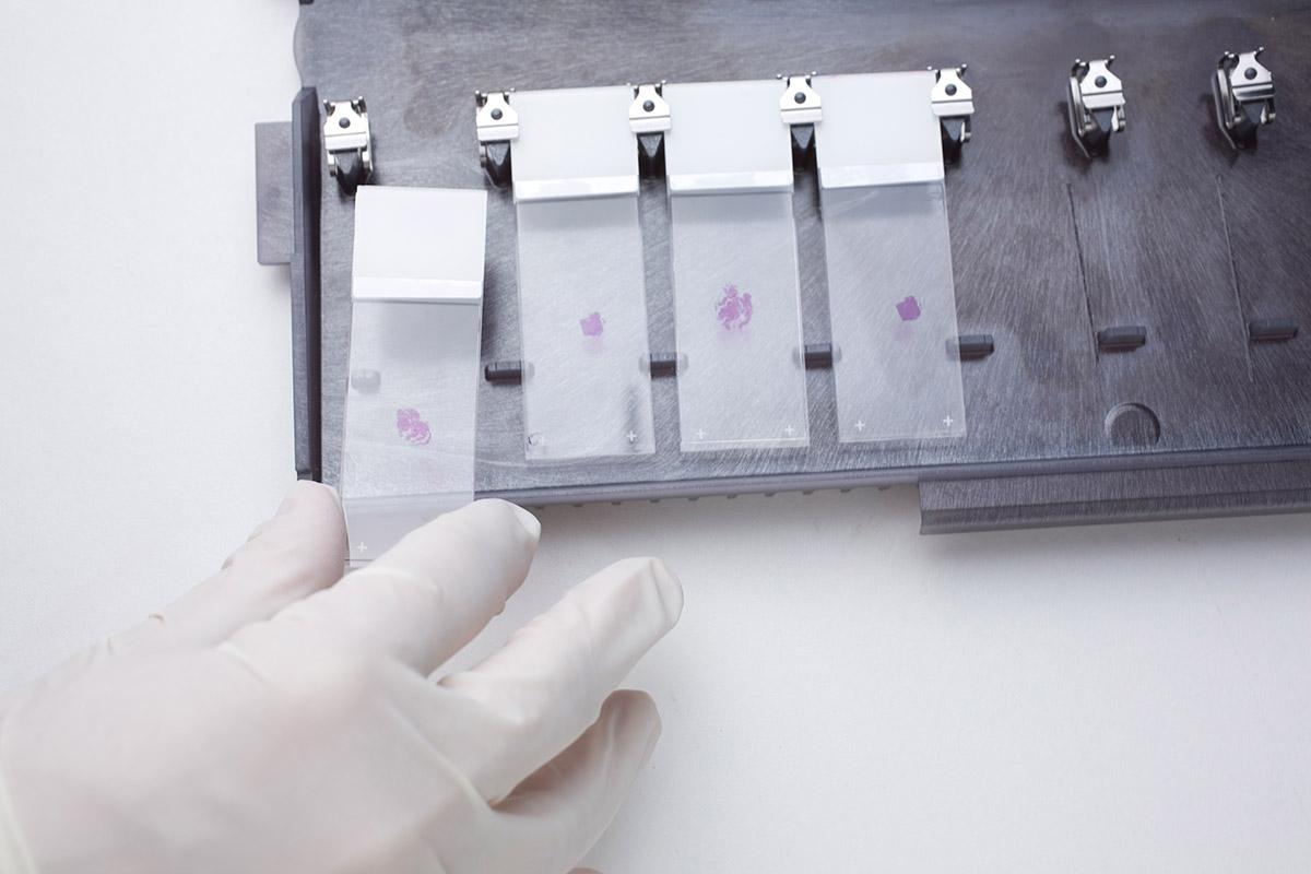 Patholytix Preclinical