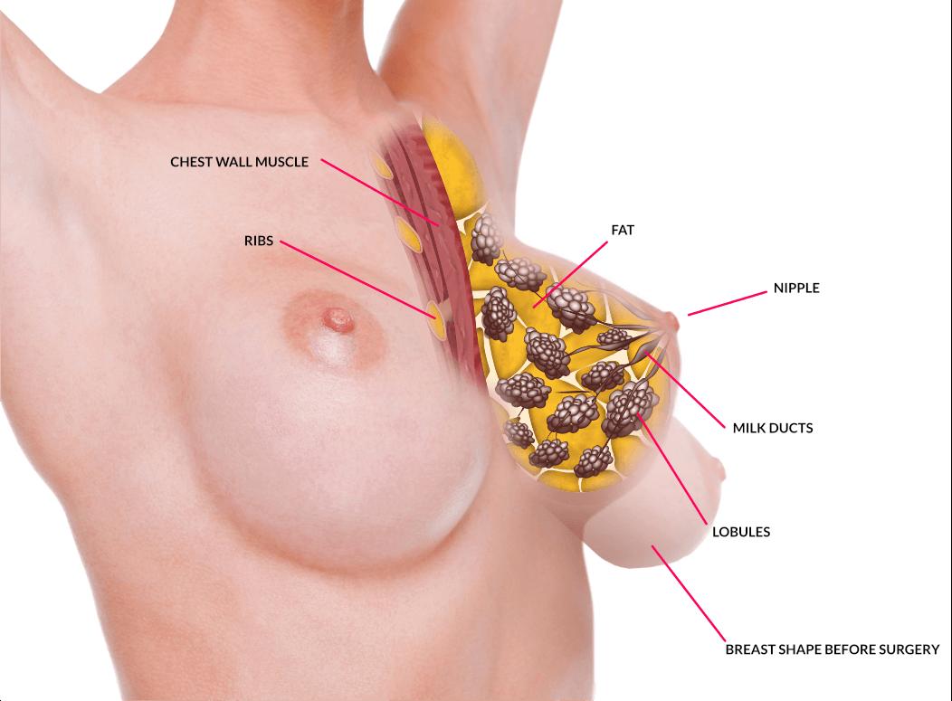 Breast Lift Surgery Tauranga