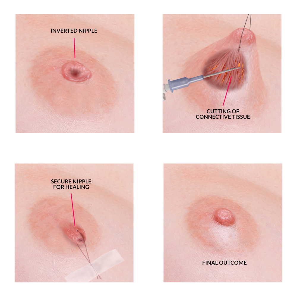 Inverted Nipple Correction Nz  Nipple Reduction Surgery -7625