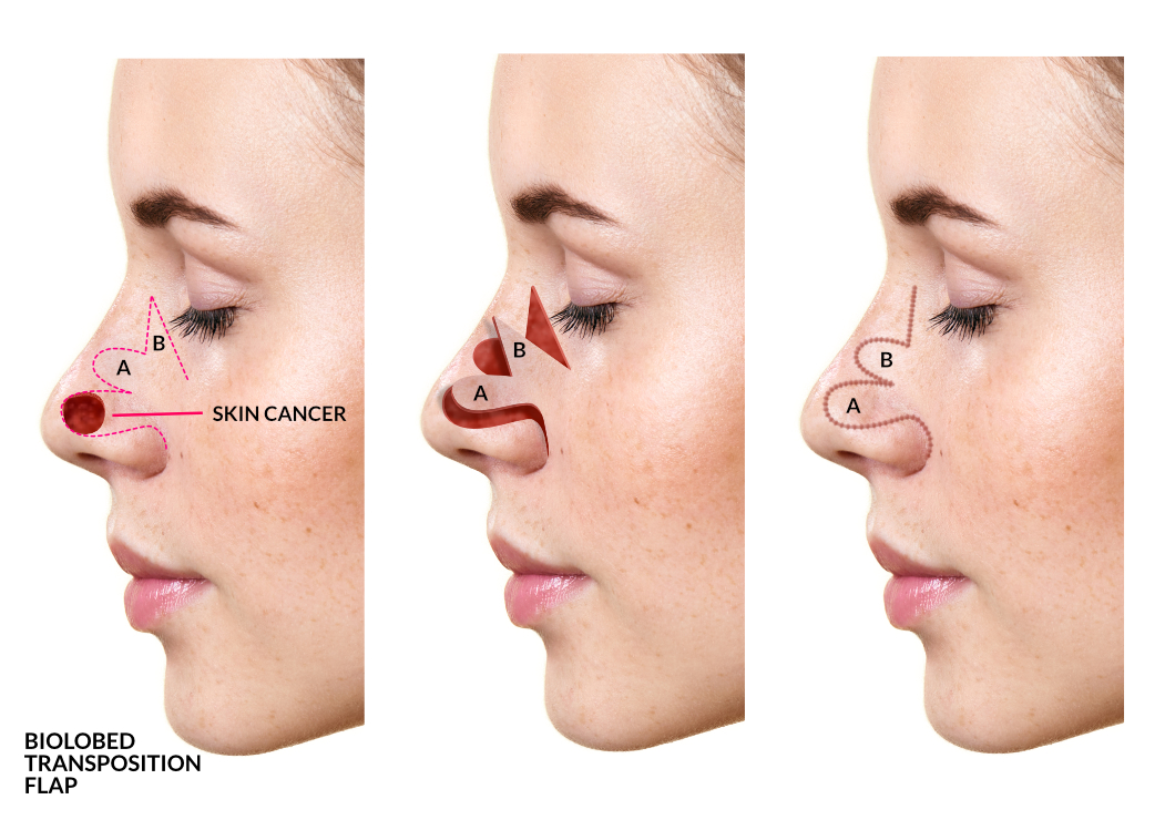 Facial Cancer Surgeon Nz  Melanoma Surgery Tauranga -2312