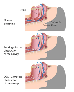 OSA graphic showing normal airway, partial obstruction,and complete airway obstruction.