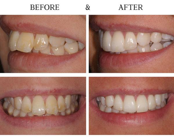Inman Orthodontics