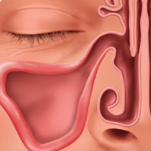 Patients experience fast relief with no nasal packing
