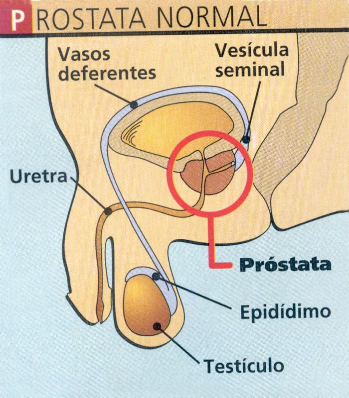 ejemplo de prostata normal