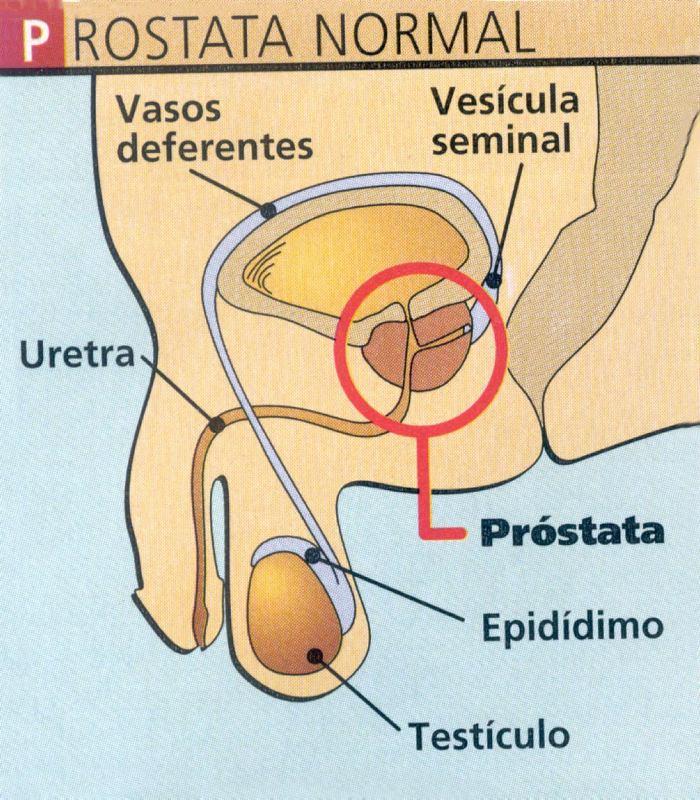 ejemplo de prostata normal