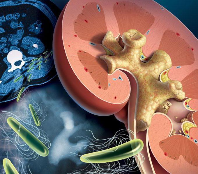 láser para quitar cálculos en el riñón