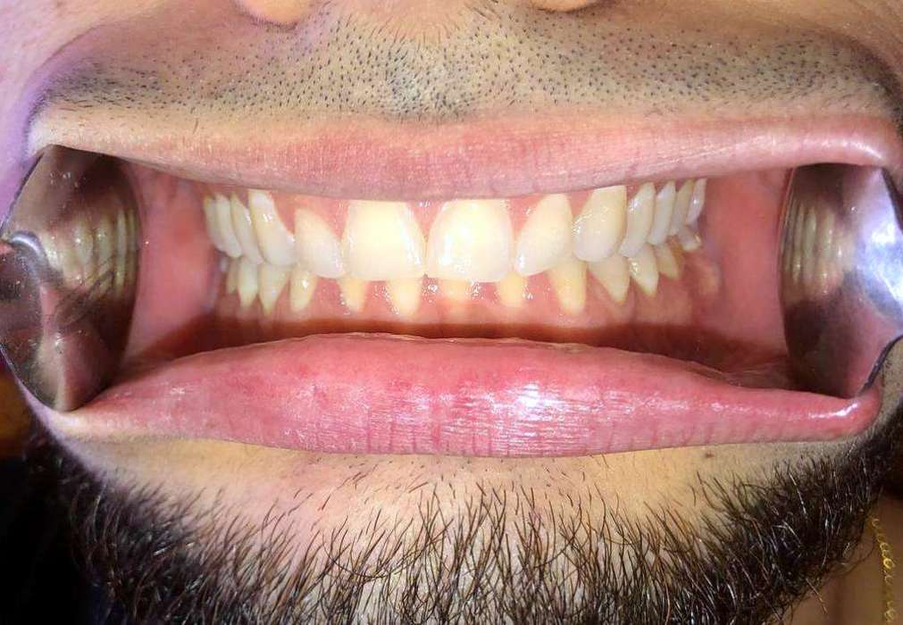 The first photo is of your teeth from the front. Bite all the way down the way you normally bite and then try do a Forced maximal smile so your muscles will retract your lips and cheeks and show as much possible of your teeth from the front. If you have anyone to give you a hand, you can use two spoons, one on each side to retract your cheeks and let someone else take the photo for you.