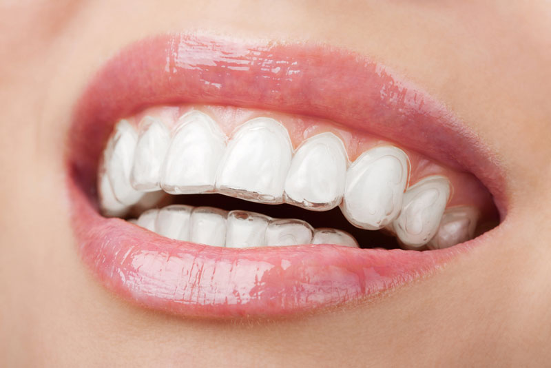 How Much Does Invisalign® Cost