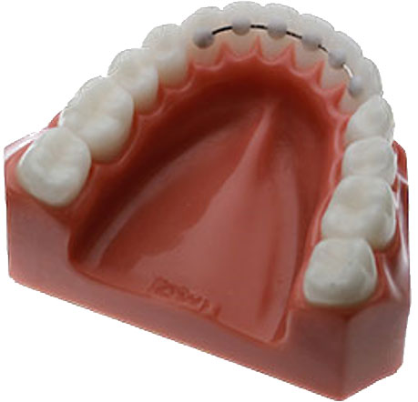 Retainers | Dublin Orthodontics