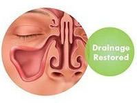 Drainage within the sinus cavity restored