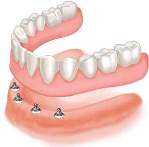 mini implant denture