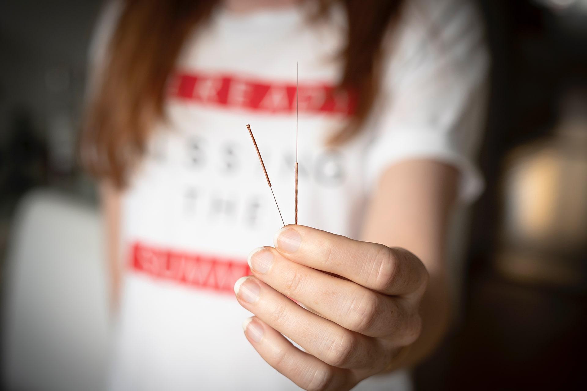 Blog Lifestyle - L'acupuncture, c'est quoi? - Suivre sa Joie - Saskia Parein