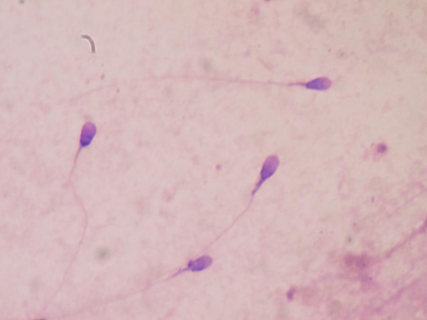sperm under microscope