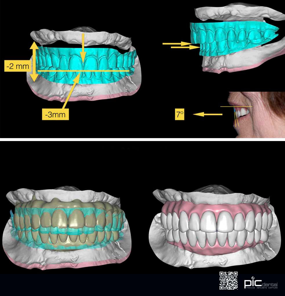 PiC Dental contents — Precise digital impression technique