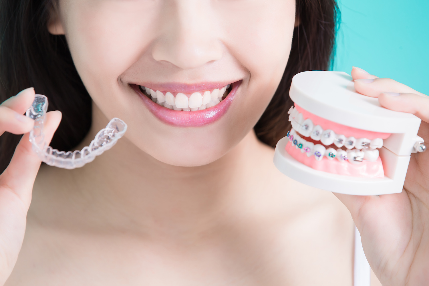 The differences between invisalign and braces