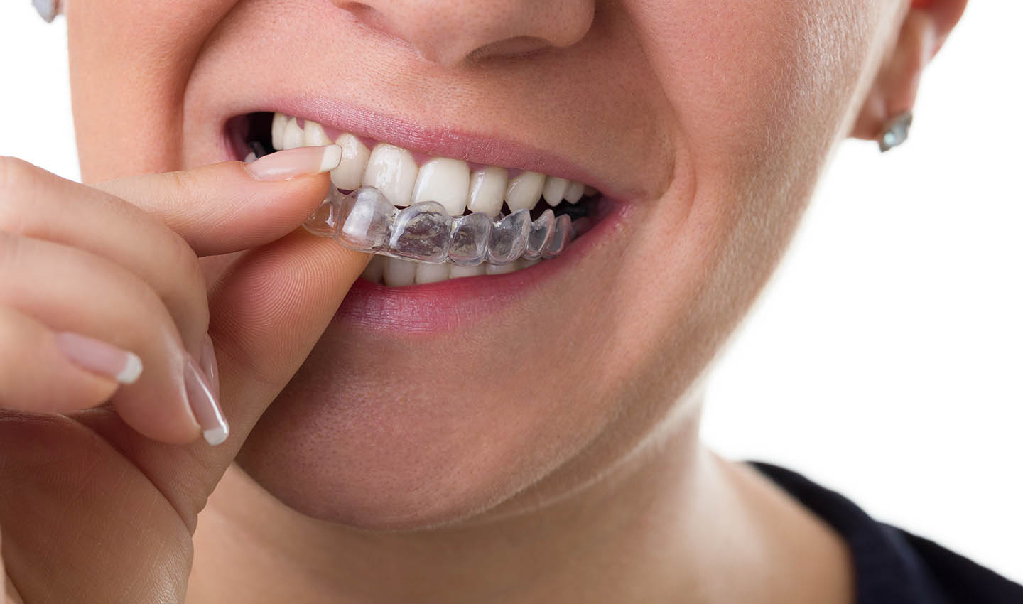 invisalign at Willow Creek Smiles