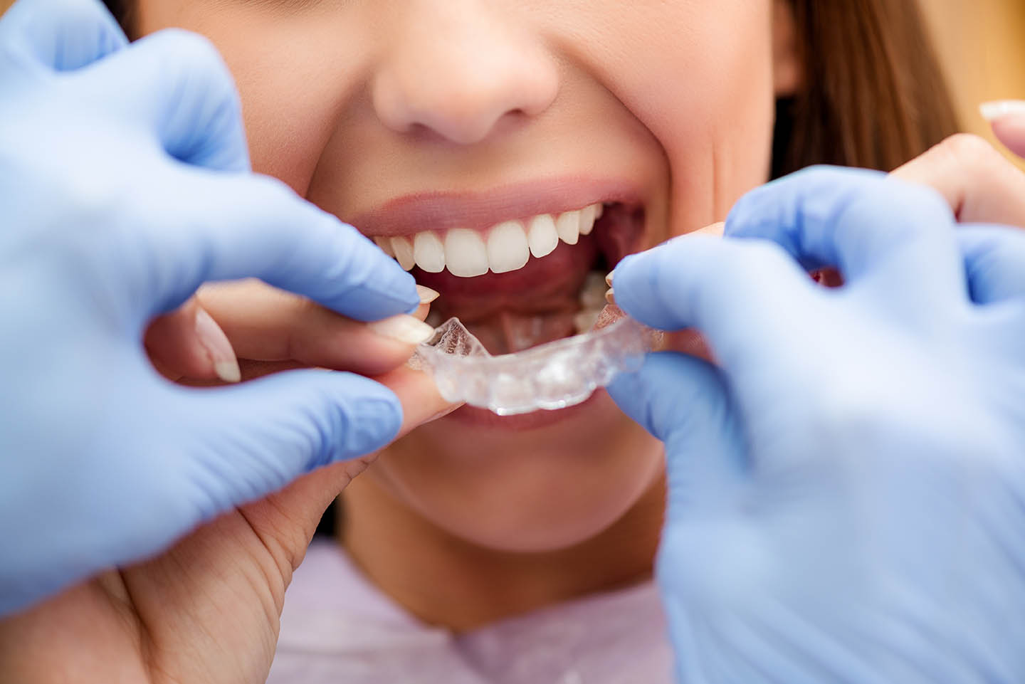 patient being fitted with invisalign braces