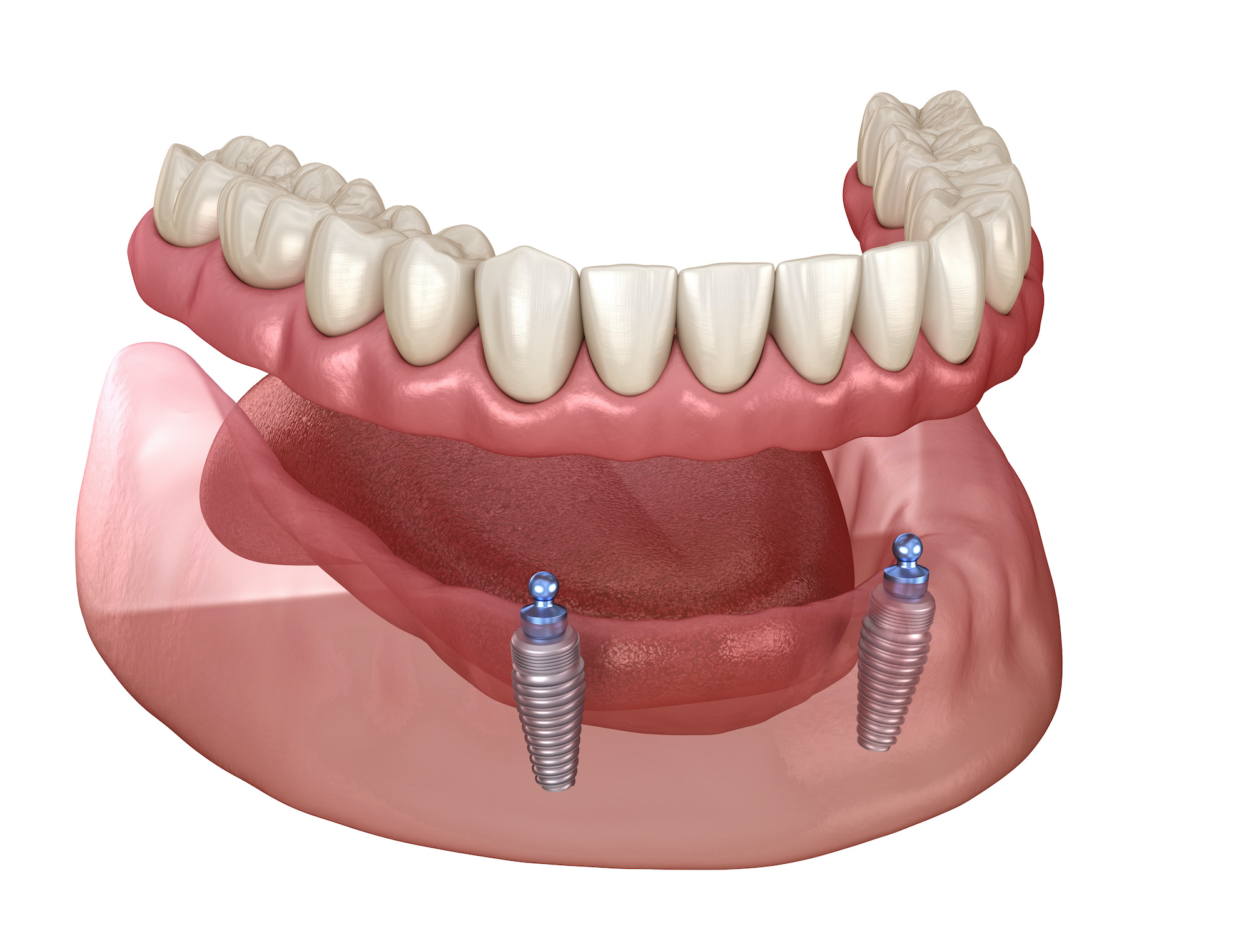 Dentures Vs. Implants: What's Right For You?