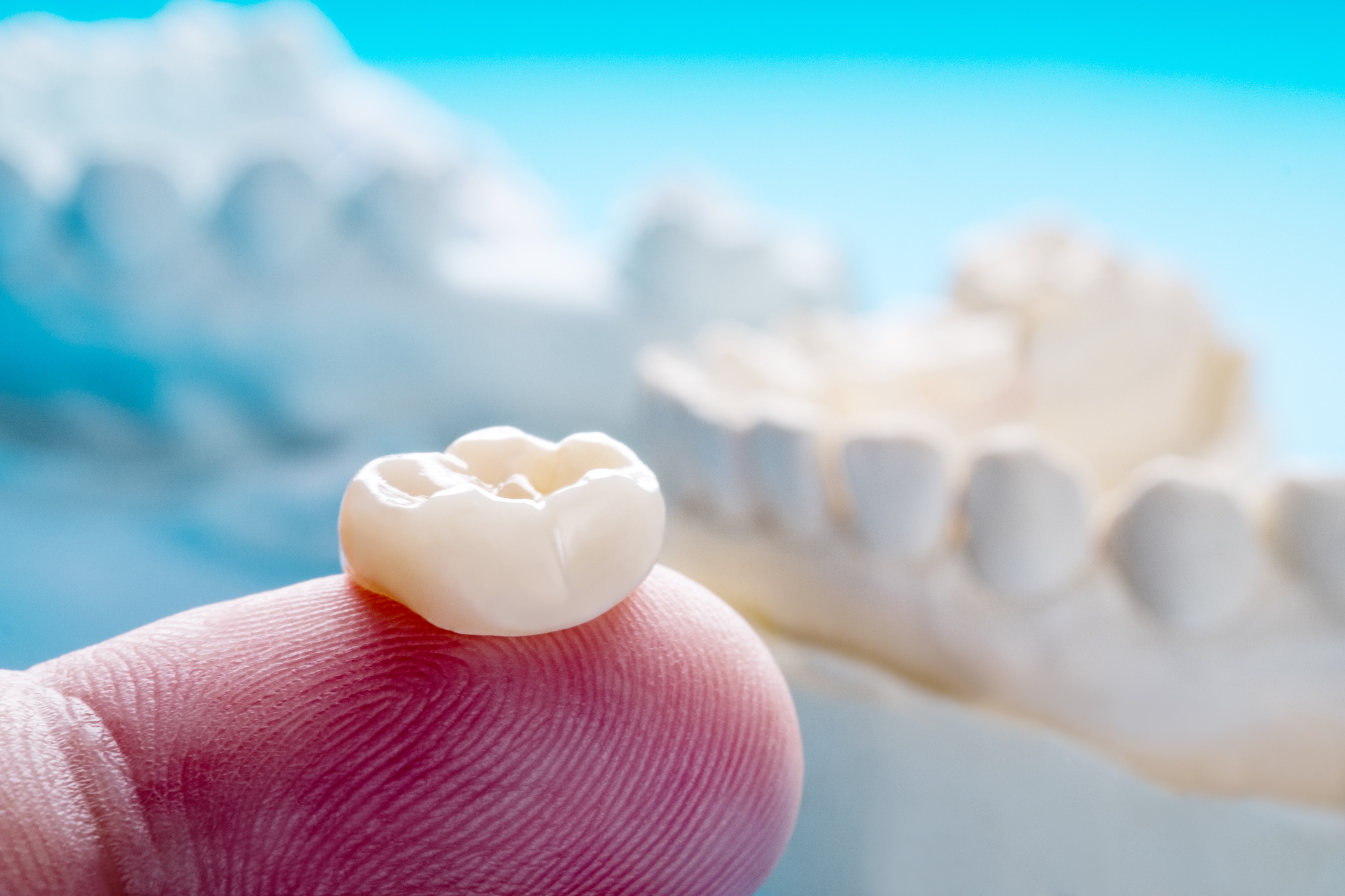 What You Need To Know Before You Get Dental Crowns