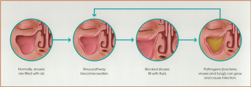 Sequential diagrams of stages of sinus health.