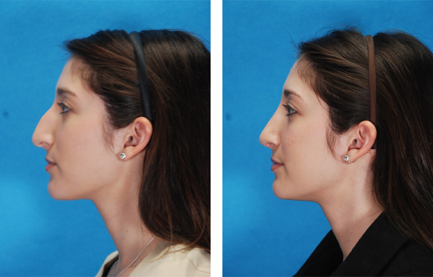 Rhinoplasty Procedure, Patient 1