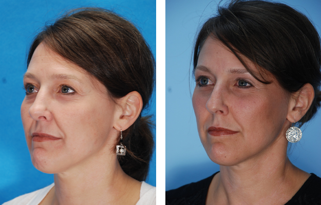 Rhinoplasty procedure Patient 3