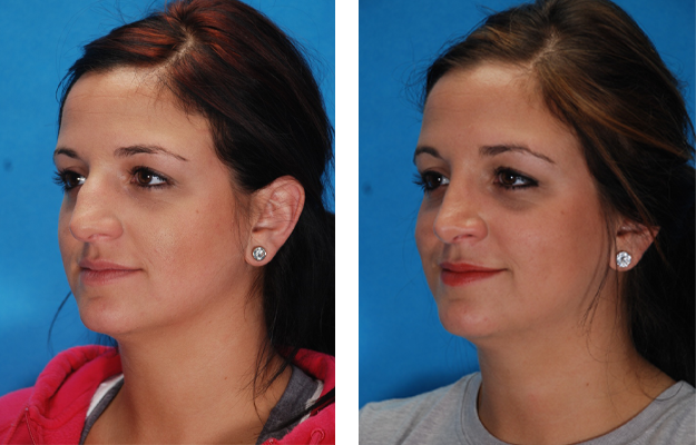 Rhinoplasty Procedure, Patient 4