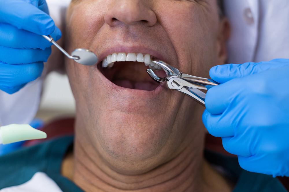 Closeup of patient receiving extraction