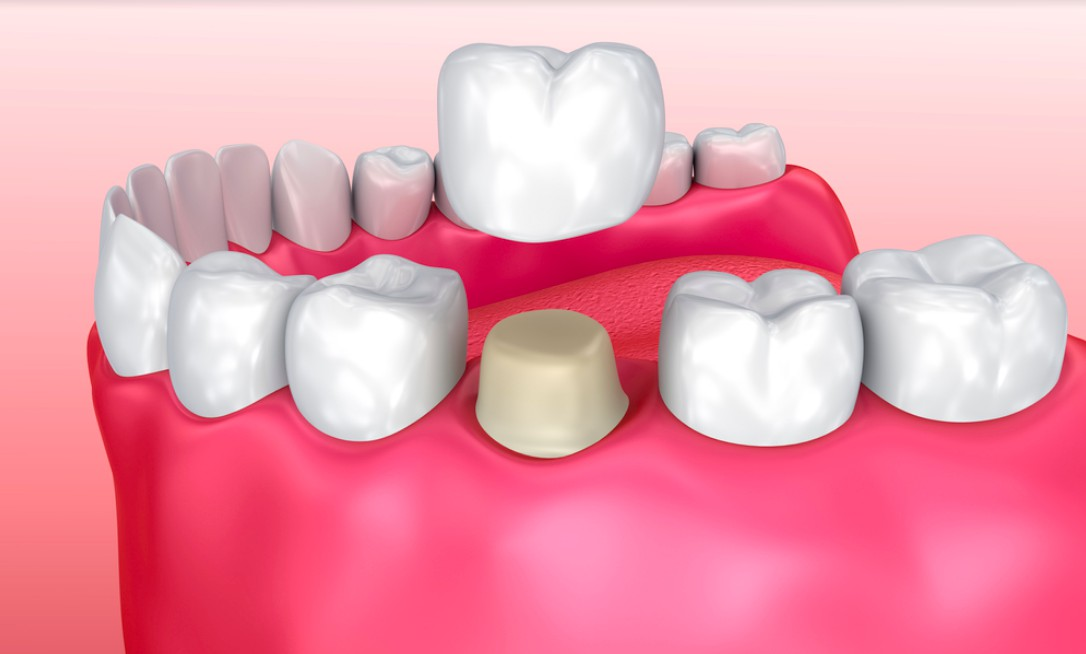 implant supported restoration