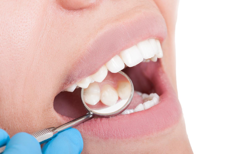 Dental instrument inside patients mouth