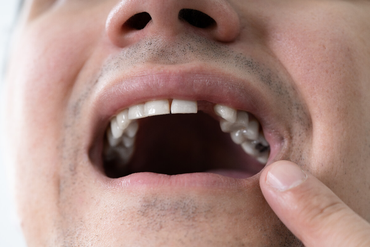 Should I Replace My Missing Teeth? Explaining What Happens If You Don't!
