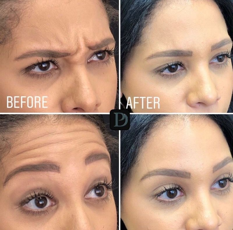 before and after botox images