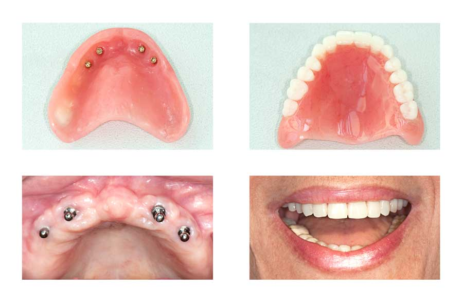 Before and after implant dentures