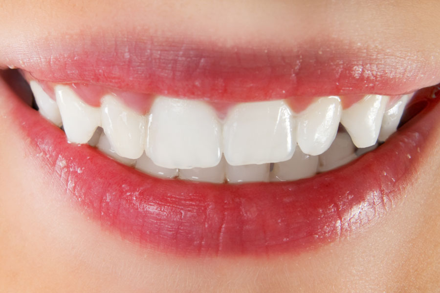 Periodontal | Dundee Family Dentistry - Yamhill County, OR