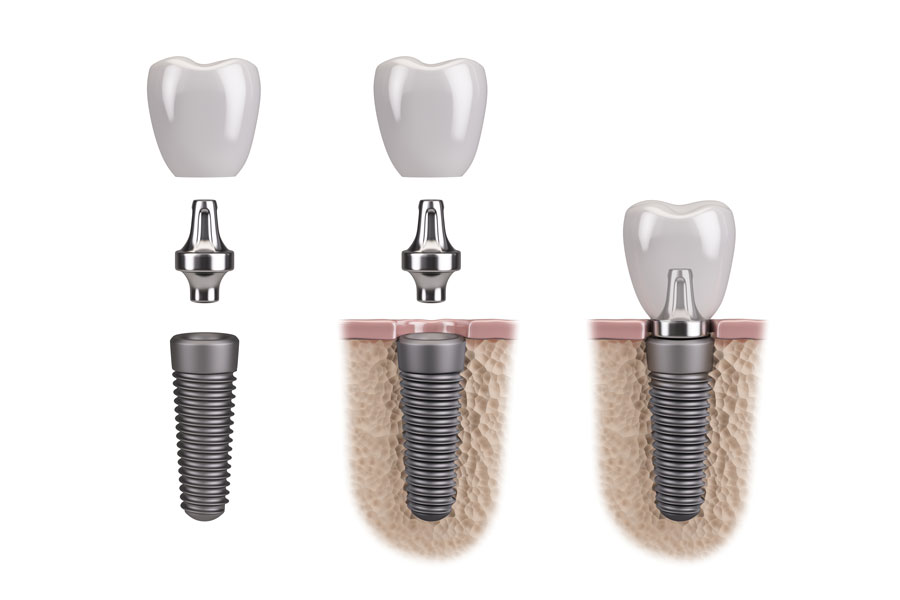 Picture of dental implatns