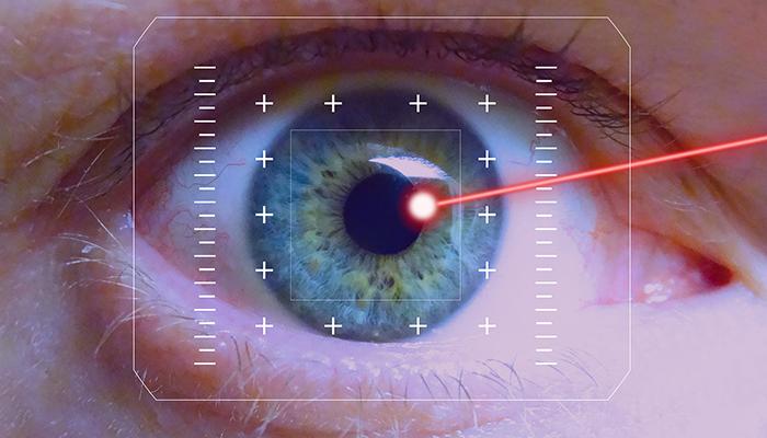 LASIK or Laser Eye Surgery