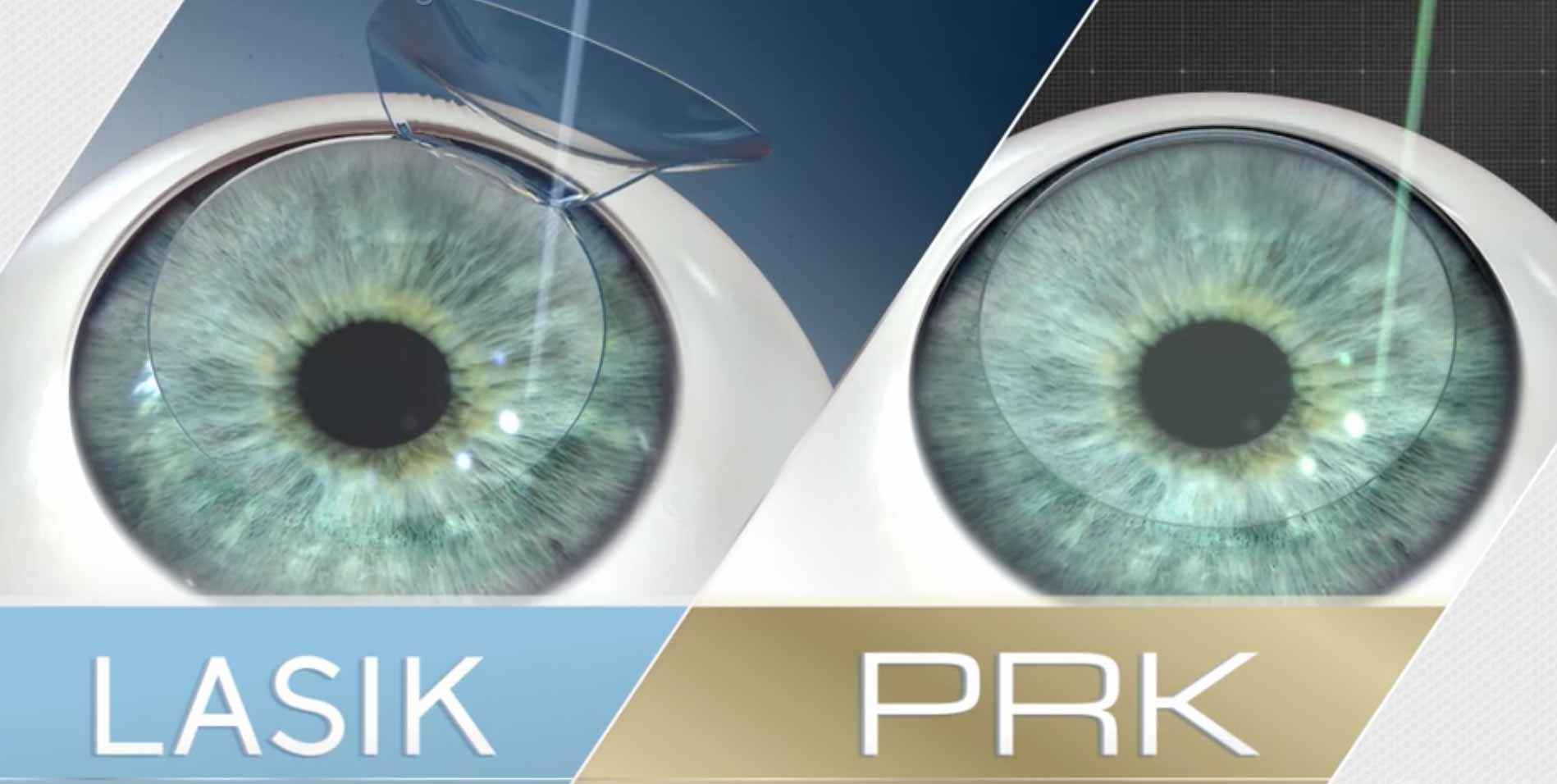PRK vs LASIK: What's the Difference?