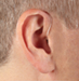 Hearing Aids - Behind the Ear (BTE)