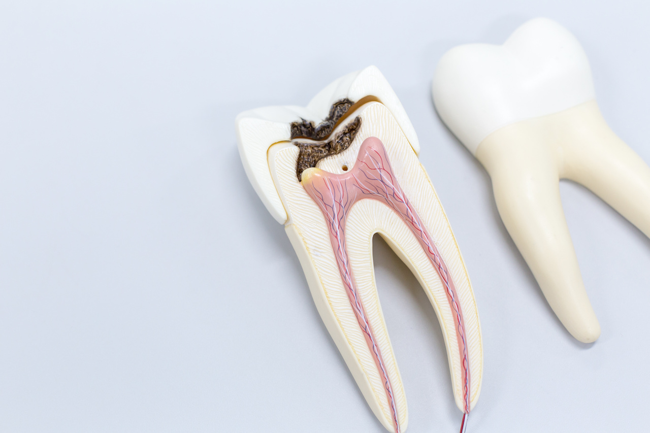 Root Canals: Three Myths About These Common Restorative Solutions