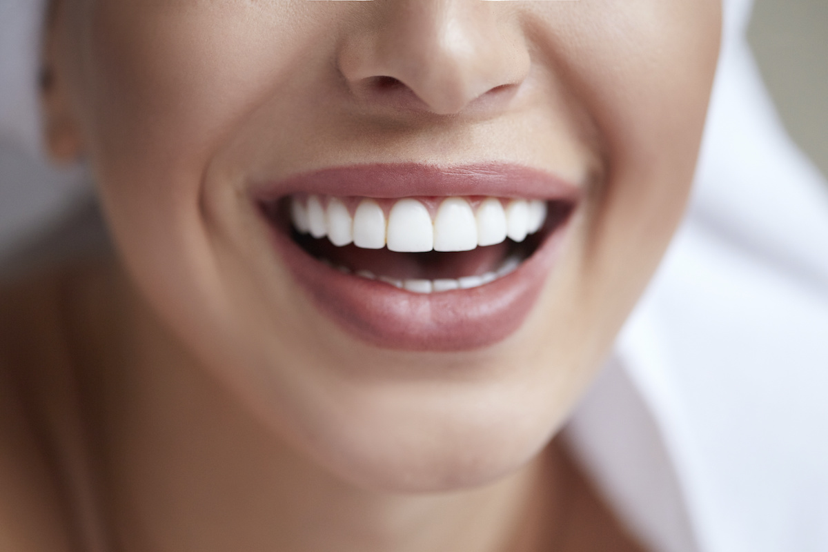 Can I Whiten My Teeth If I Have Cosmetic Work?