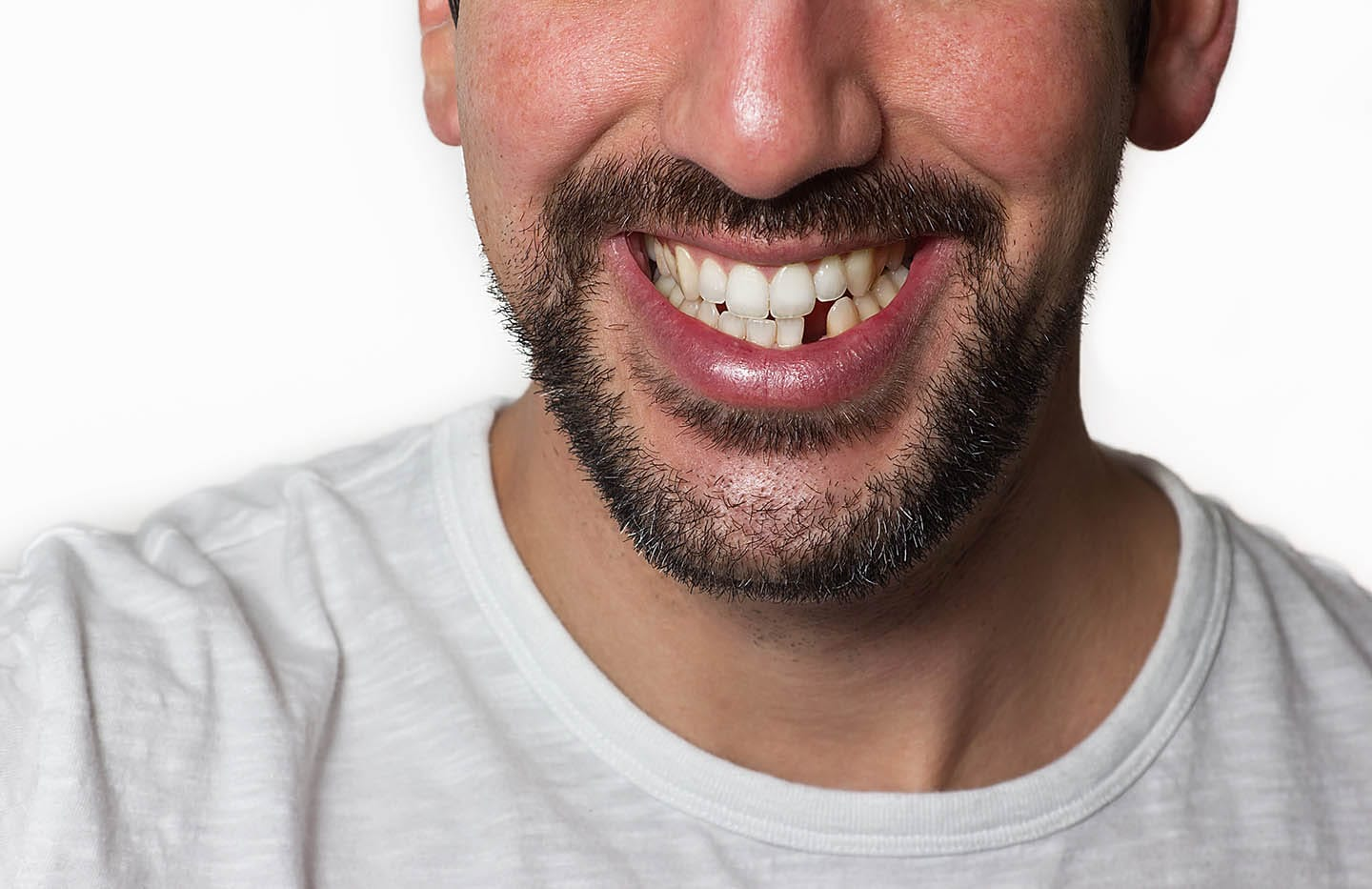 A man smiling with a missing tooth