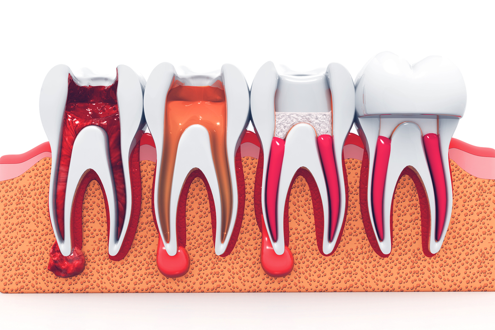 Root canals at Cardinal Family Dentistry