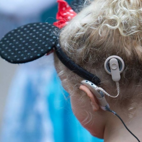 Cochlear implant on child