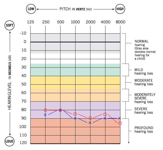 Audiogram Example | Hearing Test  CCHAT Sacramento