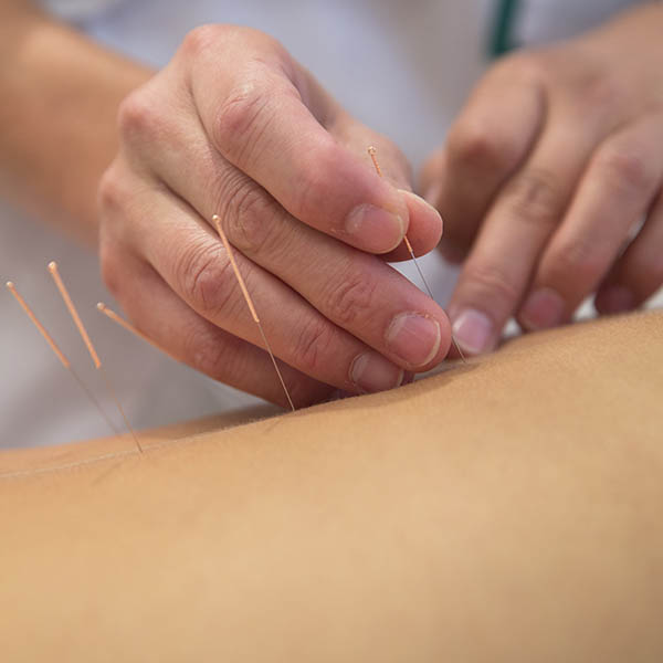 """Hero Image for the """"Influence of Culture on the Perception of Health"""" CPD course portraying shows a medical professional performing acupuncture on a patient as an integrative holistic medicine practice"""